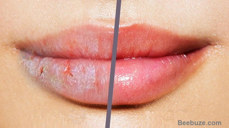 Home Remedies For Cracked Lips